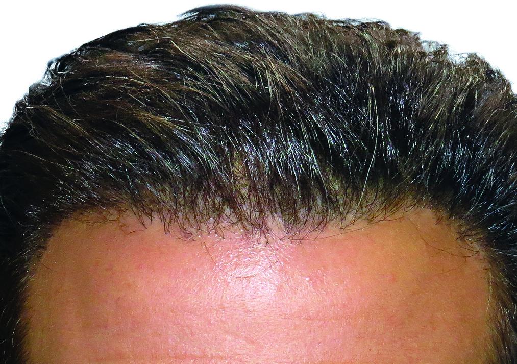 Dopo trapianto di capelli ARTAS - Turowski MD