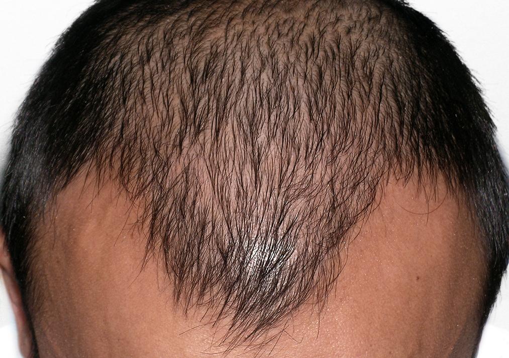 Prima del trapianto di capelli ARTAS - Nguyen, Huan MD