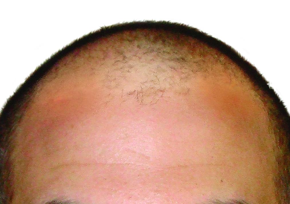 Prima del trapianto di capelli ARTAS - Turowski MD